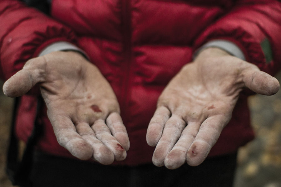A climber's chalked, scraped hands after a day on the rock. Photo: Jess Daddio